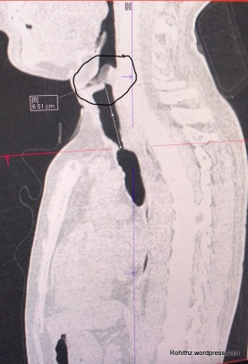 Those marked areas are the stenosed parts of the trachea..